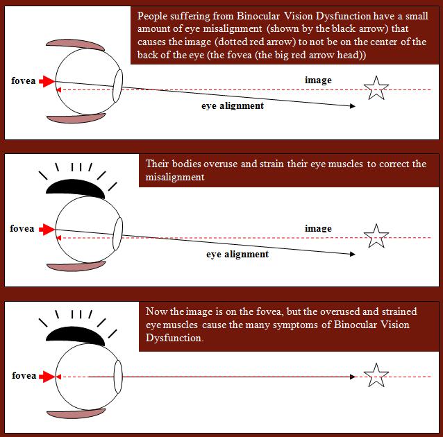 Vision Specialists | Visual description of Binocular Vision disorder