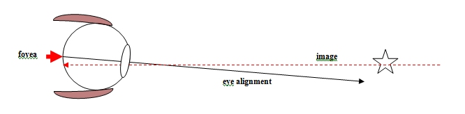 Diagram 1 - BVD - Visual description of Binocular Vision disorder
