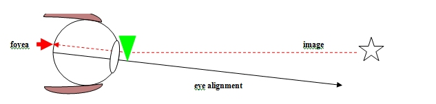 Diagram 4 - BVD - Visual description of Binocular Vision disorder