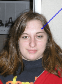 Vision Specialists demonstration of elevated eyebrow to overcom BVD